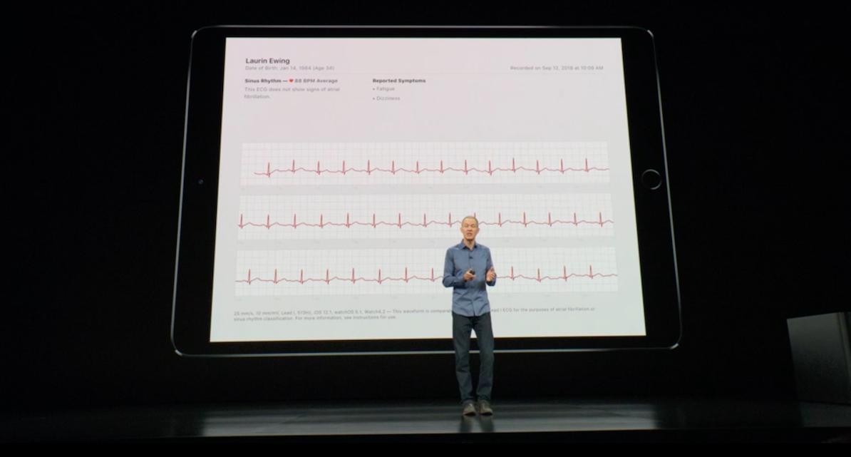 Apple Watch S4 может делать электрокардиограмму