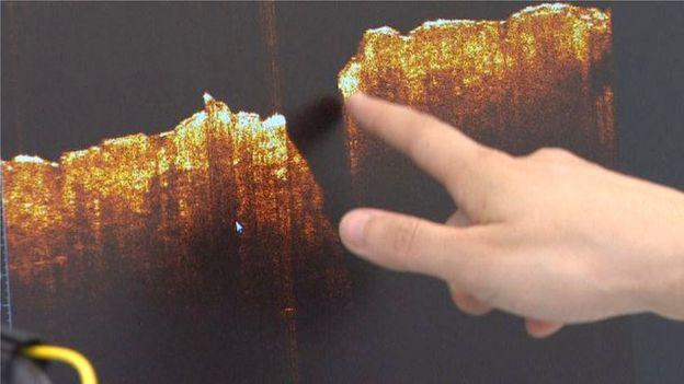Система оптической когерентной томографии создает детальные 3D-изображение структуры кожи под поверхностным слоем